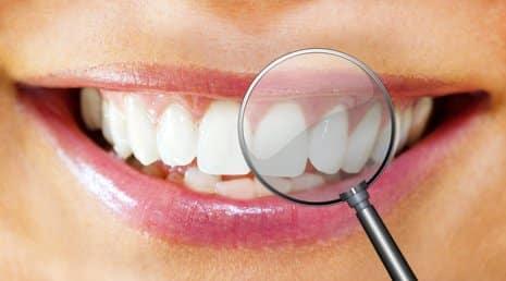Saubere Zahnzwischenräume mit der Munddusche